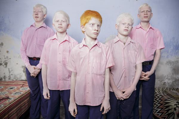 AlbinoBlindPortrait